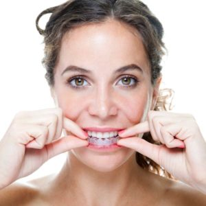 woman with Invisalign Clear Aligner